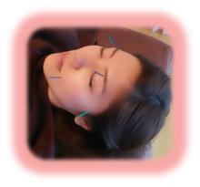 顔鍼治療写真